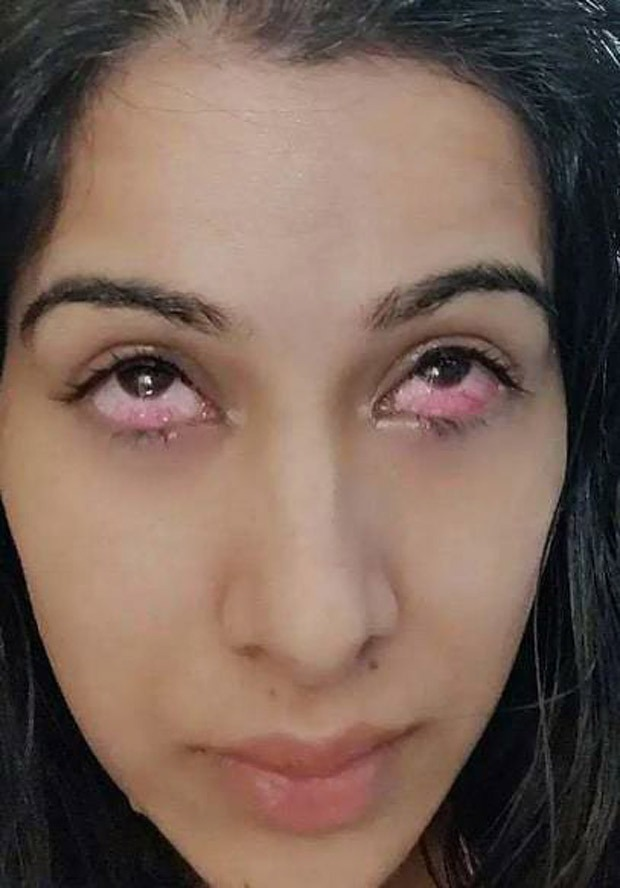Bigg Boss 14 This picture of Sara Gurpal's eyes' injury by Nikki Tamboli's acrylic nails is shocking!