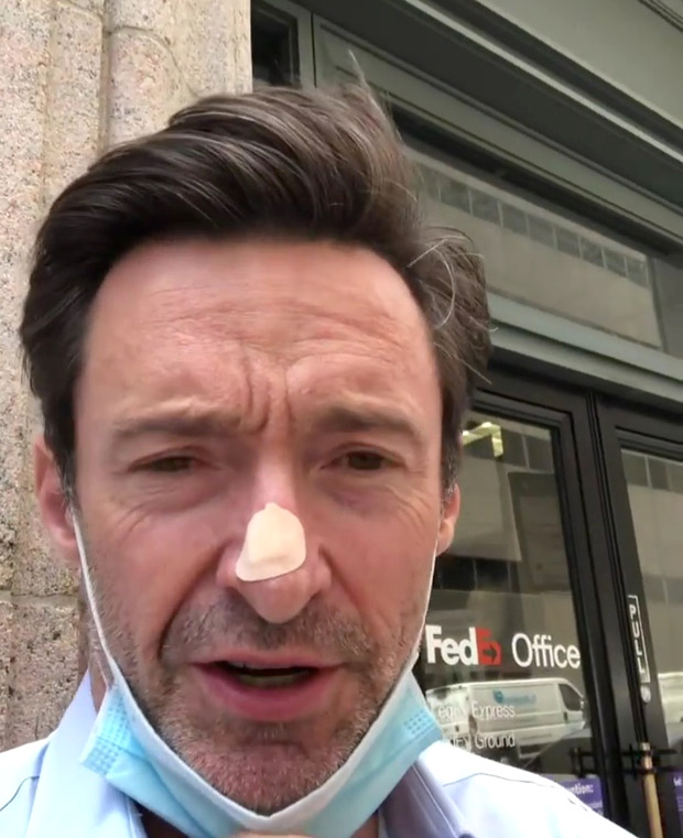 Hugh Jackman unergoes skin biopsy for possible cancer scare